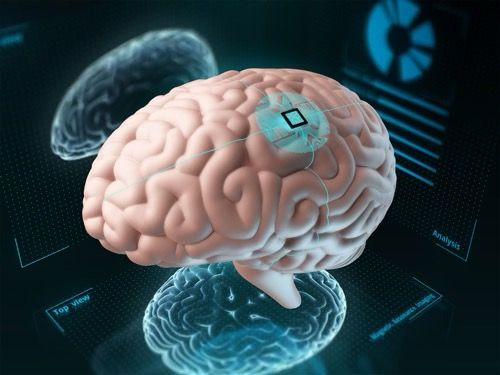 3D Rendering of a Brain with an Implant